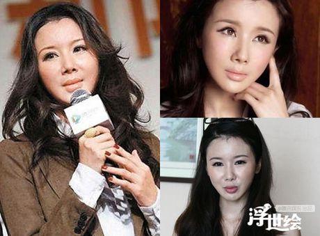 Diem mat sao Hoa ngu nghien Botox - Anh 5
