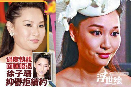 Diem mat sao Hoa ngu nghien Botox - Anh 6