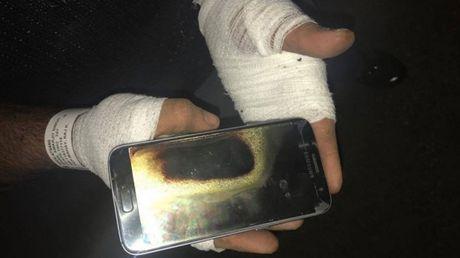 Bi bong nang vi Galaxy S7 phat no tren tay - Anh 1