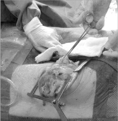 Nam thanh nien 18 tuoi mang khoi u nang 7kg trong long nguc - Anh 1
