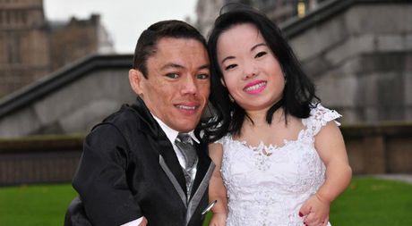 Chuyen tinh lang man cua cap vo chong lun nhat the gioi - Anh 1