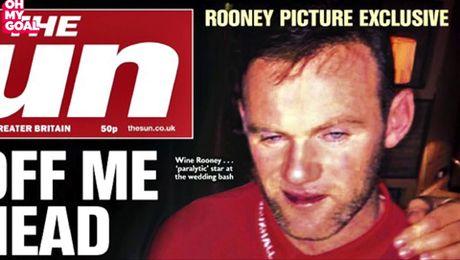 Wayne Rooney dinh chan thuong do... dam vao chai nuoc - Anh 2