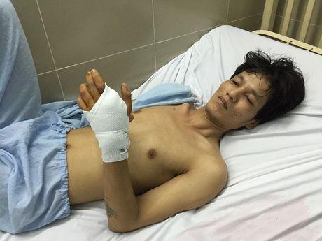 Choi game chui the, nam thanh nien bi ban trong thuong - Anh 1