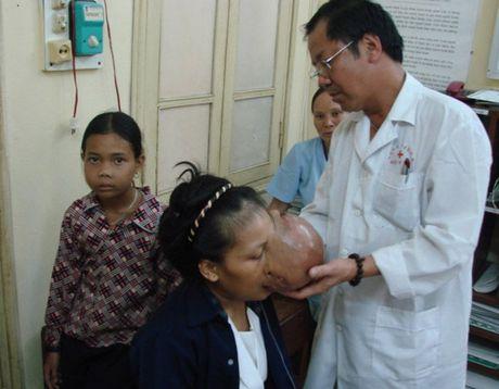 BS Nguyen Quoc Bao: Khac tinh cua nhung khoi u quai - Anh 5
