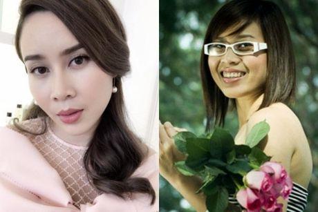Luu Huong Giang: 'Toi phau thuat tham my de guong mat hoan hao hon' - Anh 1
