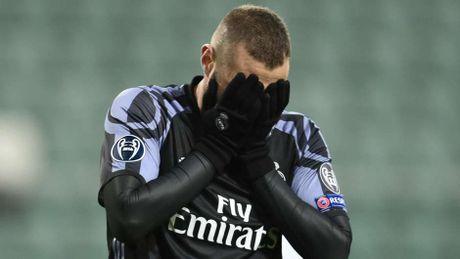 Gareth Bale va nhung ca chan thuong cua Real mua nay - Anh 11