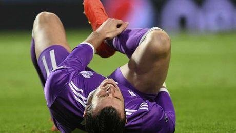 Gareth Bale va nhung ca chan thuong cua Real tu dau mua giai 2016/17 - Anh 1