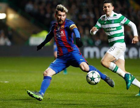 Messi tiet lo ly do thay doi ngoai hinh den chong mat - Anh 4