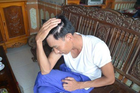 Vu 19 nam tron na o Yen Bai: Tu bat hanh den... moi tinh co tich - Anh 2