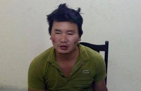 Bat coc, dam truong CA: Thay nan nhan co dieu kien - Anh 1
