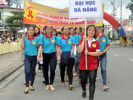 Huong toi muc tieu ket thuc dai dich AIDS vao nam 2030 tai Viet Nam - Anh 2