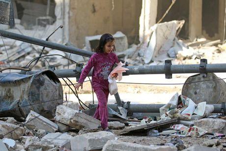Hinh anh doi khat, thieu thon va tuyet vong o vung chien su Aleppo - Anh 14
