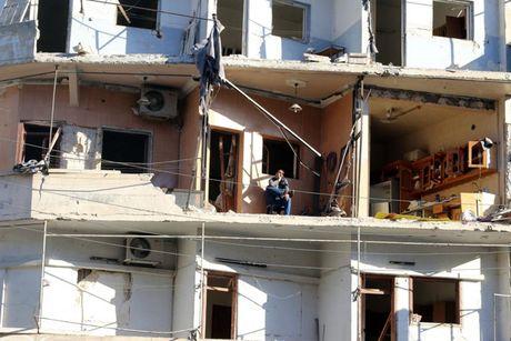 Hinh anh doi khat, thieu thon va tuyet vong o vung chien su Aleppo - Anh 3