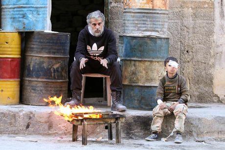 Hinh anh doi khat, thieu thon va tuyet vong o vung chien su Aleppo - Anh 9
