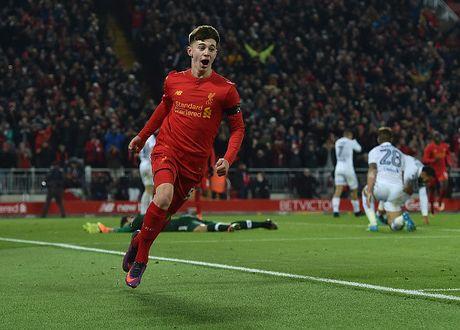 Chum anh Liverpool danh bai Leeds o tu ket League Cup - Anh 8