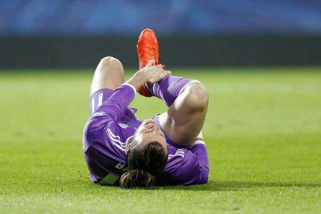 Gareth Bale duong thuong 4 thang - Anh 1