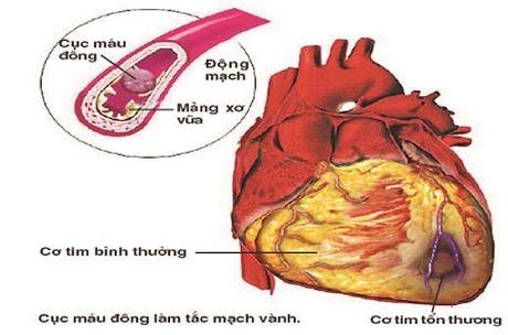 Can benh cuop di sinh mang ca si Quang Ly nguy hiem the nao? - Anh 3