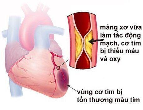 Nhoi mau co tim: Nguyen nhan va cach phong tranh - Anh 2