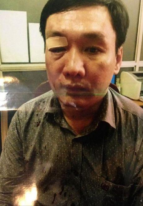 Hoa Binh: Di mua HSDT, dai dien doanh nghiep bi danh rach mat - Anh 2