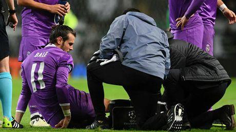 SOC: Gareth Bale co the phai nghi den gan het mua - Anh 2