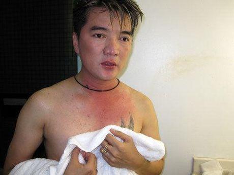 Vuot mat dan anh, Truong Giang khong biet dieu - Anh 2