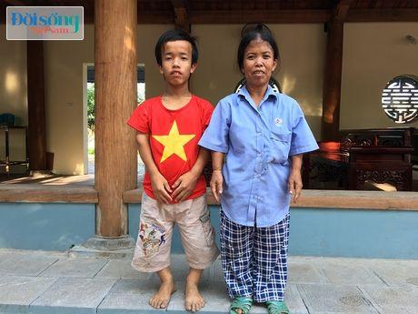 Chuyen la ve mot gia dinh toan nguoi ti hon: 'Toi da di nhieu noi xin viec nhung ho khong nhan' - Anh 5