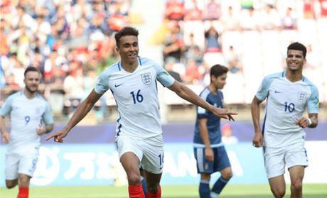 U-20 Anh 'chon vui' Argentina - Anh 1
