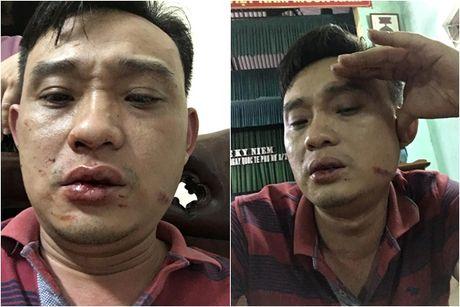 Hung Yen: Truong thon cung em trai danh dan nhap vien - Anh 1