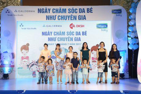 DKSH ra mat san pham danh cho da tre so sinh Cetaphil Baby - Anh 2