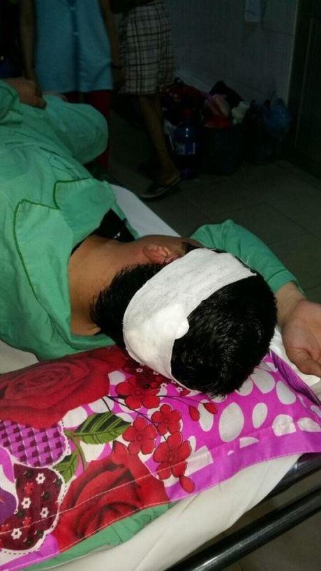 Ky 2: Nan nhan to su bat thuong trong ket qua giam dinh thuong tich - Anh 3