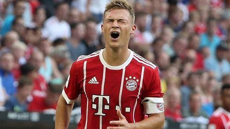 Bayern bi dat trong tinh trang bao dong sau mua He that vong - Anh 3