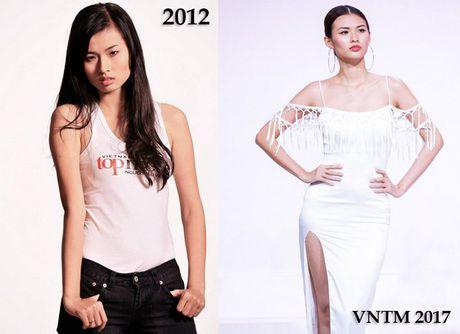 Thuy Duong Next Top Model: 'Phau thuat tham my la cuoc dua khoc liet nhung quyen ru' - Anh 2