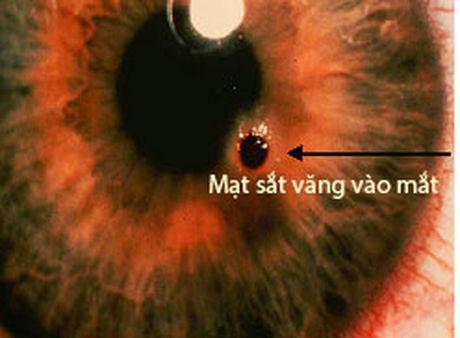 Xu tri cap cuu chan thuong mat - Anh 1