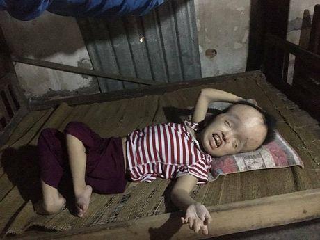 Xot xa canh vo ngheo gong ganh nuoi chong con bi ung thuy nao - Anh 2