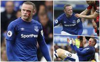 Hình ảnh Rooney 'đổ máu' ở chiến thắng của Everton trước Bournemouth