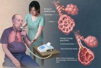 Dự phòng điều trị đợt cấp ở người bị COPD