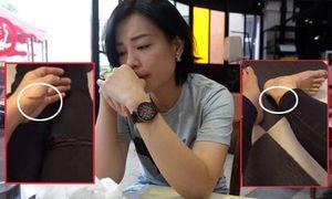 Vợ Xuân Bắc livestream bị nhiều vết thương xây xát và khóc lóc nói Kim Oanh khốn nạn