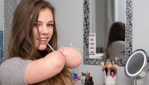 Cô bé 14 tuổi cụt tứ chi trở thành beauty blogger
