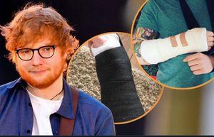 Ed Sheeran 'bầm dập' vì tai nạn, có thể hủy tour