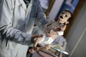Thế giới rúng động trước em bé Syria gầy trơ xương nặng 2kg vì đói