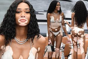 Siêu mẫu Winnie Harlow diện bikini nhảy múa trên du thuyền triệu đô