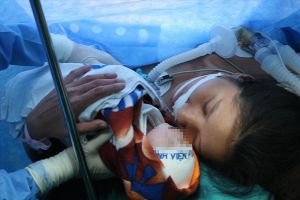 Bác sĩ 2 bệnh viện cứu lấy thai cho bệnh nhân hẹp khí quản