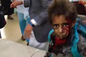 Tên lửa đánh trúng xe bus học sinh, hàng chục trẻ em chết thảm