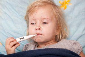 Những sai lầm khi chăm sóc trẻ mắc bệnh sởi