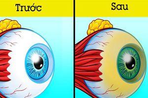 Bác sĩ mắt chia sẻ 6 lời khuyên dành cho những ai muốn loại bỏ cặp kính cận