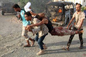 Liên quân Arab bị tố tấn công giết hại 26 thường dân tại Yemen