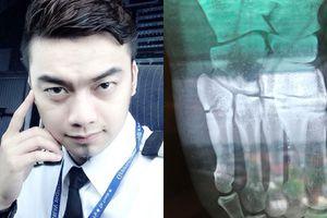 Bị chấn thương nặng ở chân, sao nhí 'Đội đặc nhiệm nhà C21' Hà Duy vui vẻ đón nhận vì đang gánh hạn làm nhà