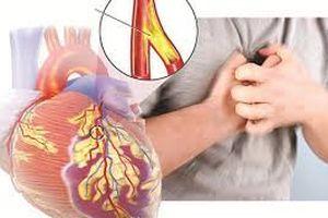 Dấu hiệu sớm cảnh báo bệnh động mạch vành