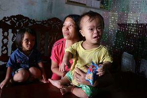 Gia đình khốn khổ bốn đời di truyền gen 'chú lùn'
