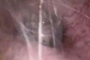 Kinh hoàng cảnh nhện giăng tơ ngay trong tai người đàn ông